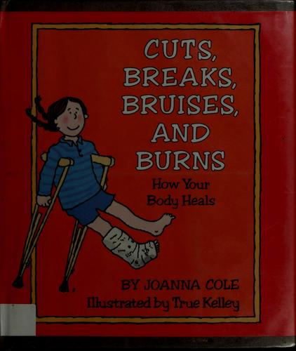 Cuts, breaks, bruises, and burns by Joanna Cole